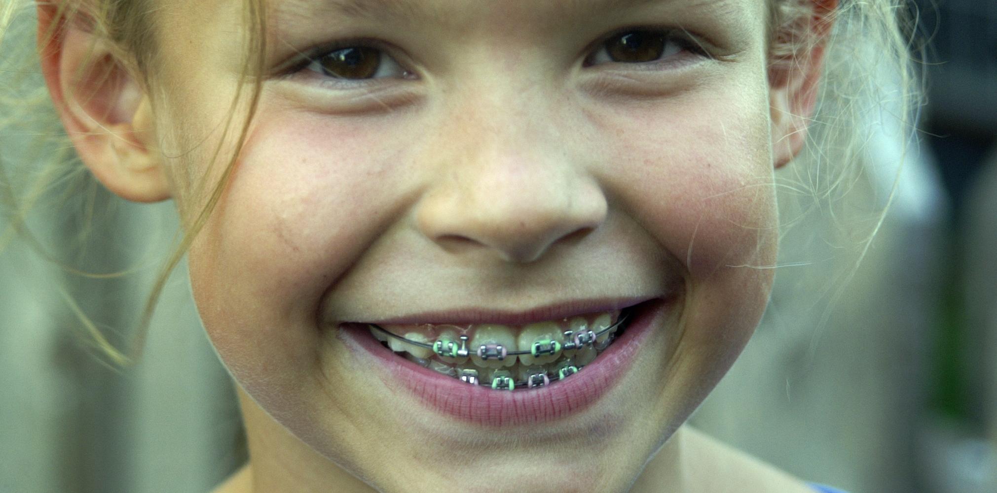 Aparelho Ortodôntico Só Com Dentista
